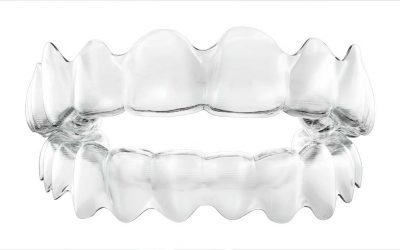 Invisalign — In-Treatment Tips!