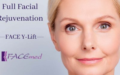 Full Facial Rejuvenation – the FACE Y Lift