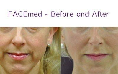 An Instant Facelift? Thread Lift is the answer!