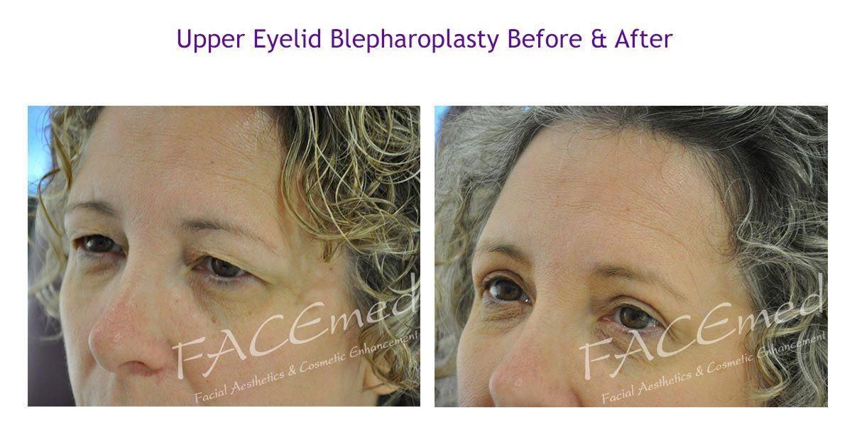 Upper Eyelid Blepharoplasty case study 2